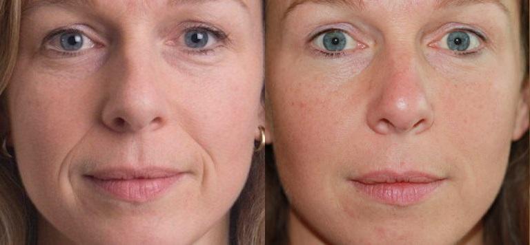 dermal-fillers-before-after