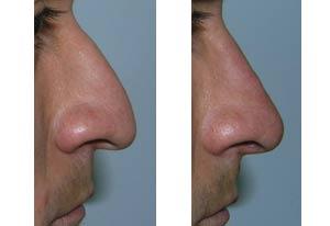 Antes y después rinomodelación en nariz de hombre